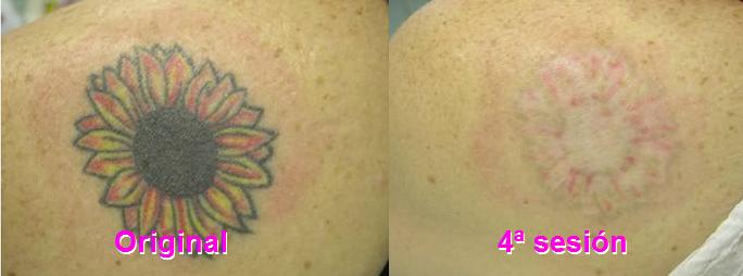 Borrado de Tatuajes con Láser