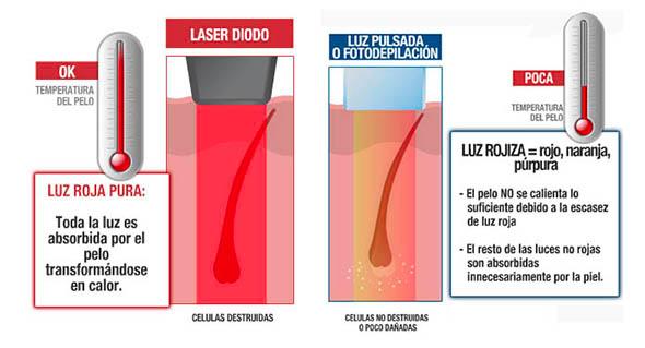 Depilación con Láser Diodo